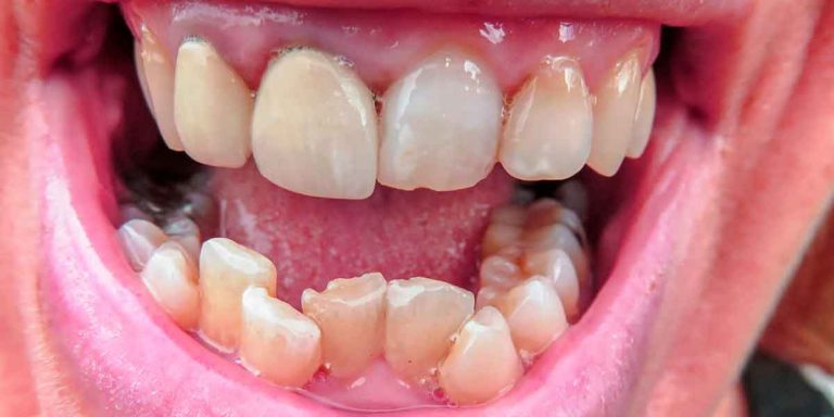 Crooked Teeth? How We Can Help You